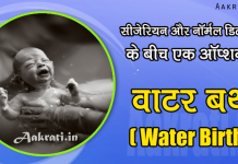 Water Birth Delivery