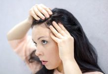 Female Baldness Remedies