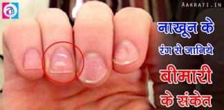 Nails Indication of Health